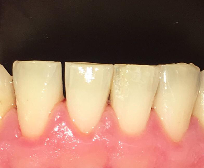 before and after tooth cleaning in  cookstown