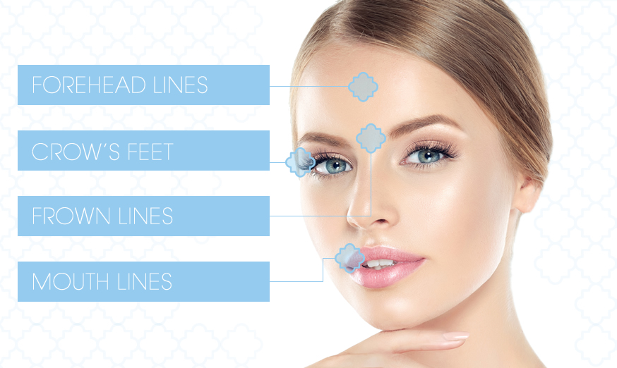 image showing which areas Dr O'Hare can target with Botox at the skin clinic